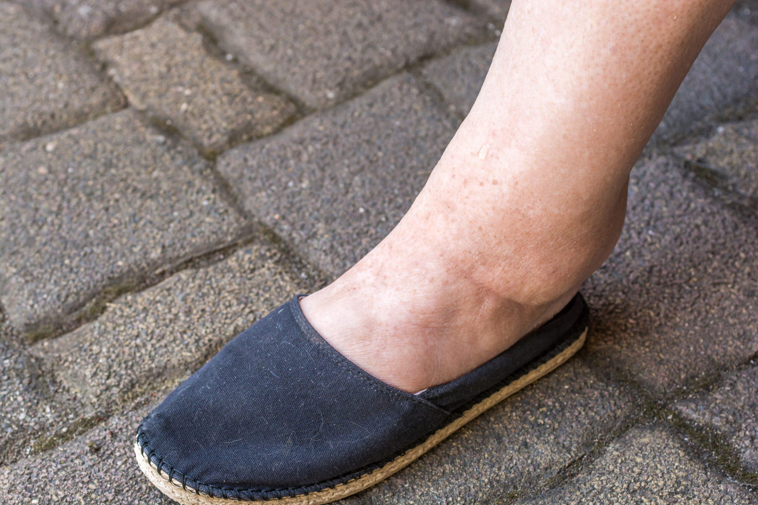 picioare umflate din reteție de apă